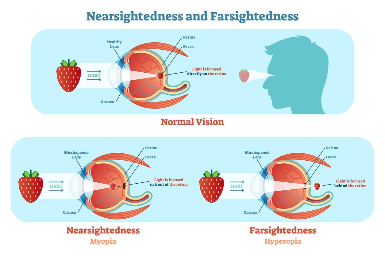 hogyan kell kezelni a látást 1 25 látás hátsó idegek